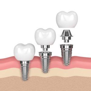 sostituzione di un dente singolo