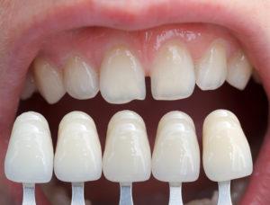 corone dentali in zirconia implantologia bologna