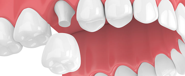 corona dentale in zirconia