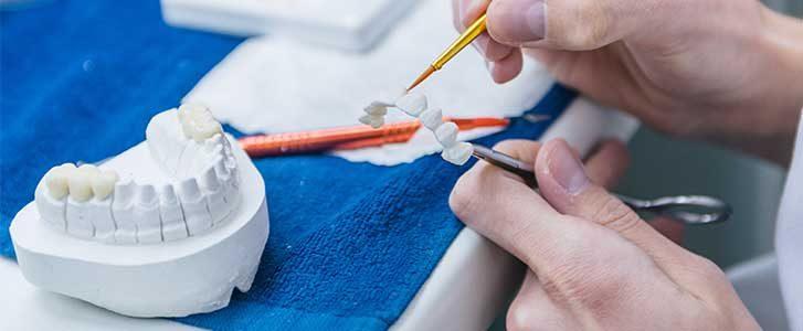 protesi dentali nuovi materiali