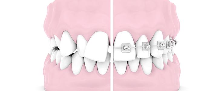 malocclusione e parodontite dentista bologna